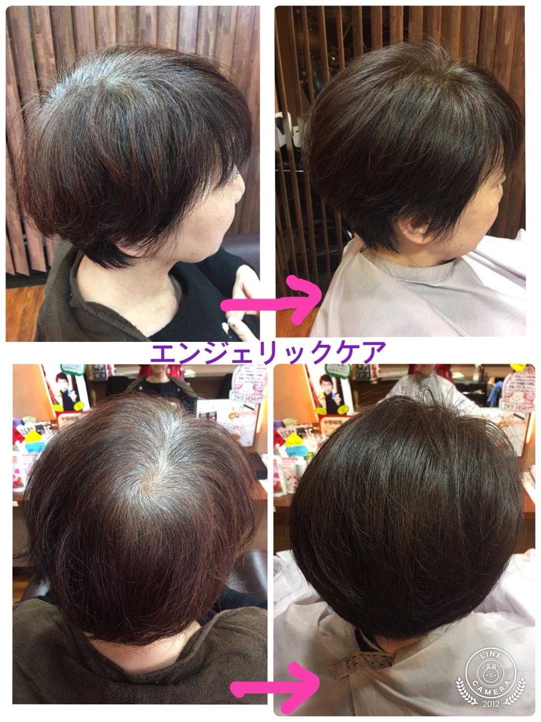 髪の生え癖の改善「エンジェリックケア」